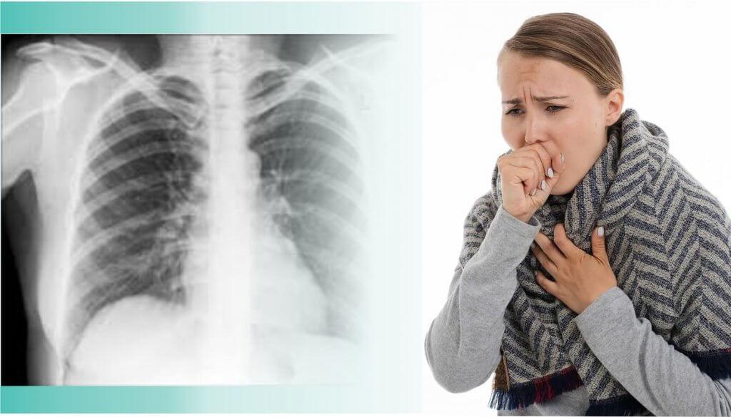 vacina pneumonia